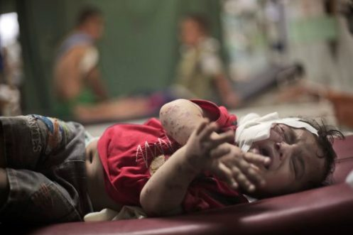 A Palestinian boy cries while receiving treatment for injuries caused by an Israeli strike at a U.N. school in Jebaliya refugee camp, at the Kamal Adwan hospital in Beit Lahiya, northern Gaza Strip, Wednesday, July 30, 2014. Several Israeli tank shells slammed into the crowded U.N. school used as shelter for refugees in the Gaza war early on Wednesday. (AP Photo/Khalil Hamra)